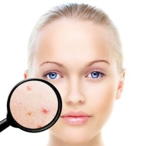 acne treatments at heaven therapy beauty rooms whitley bay and Tynemouth